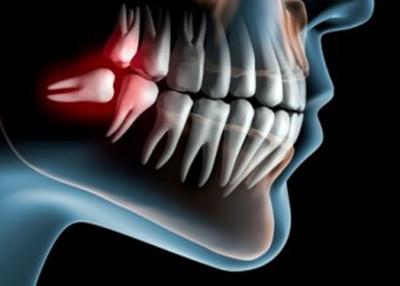 Ząb do ekstrakcji